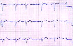 Behandlungszimmer mit EKG Gerät